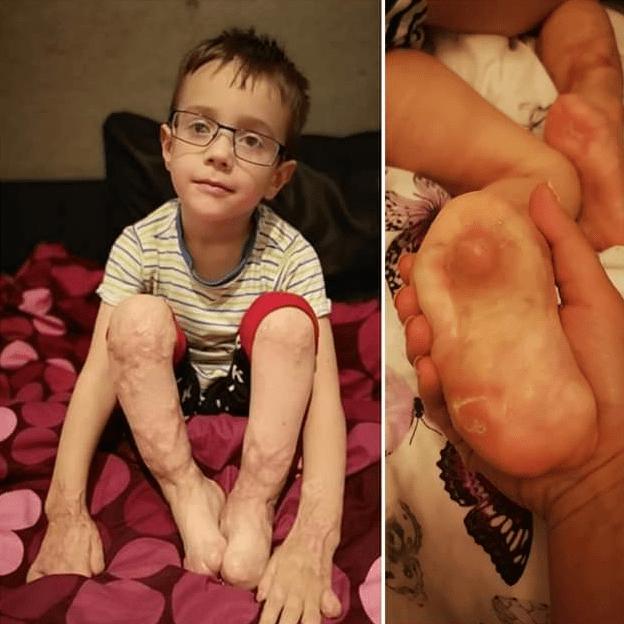 Save my son's legs - Jakob Kolek