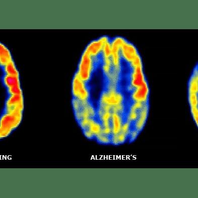Rare Dementia Support FTD