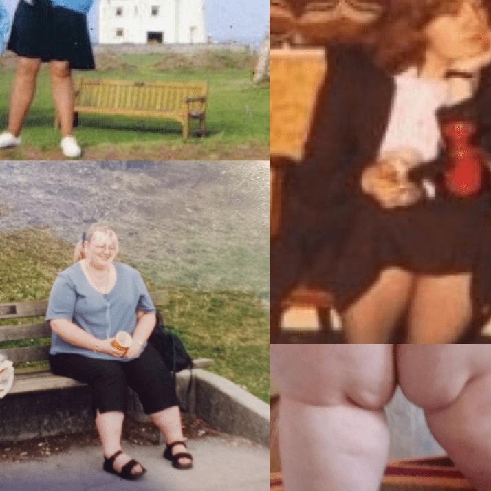 Lipoedema Surgery Fund - Tess Sanderson