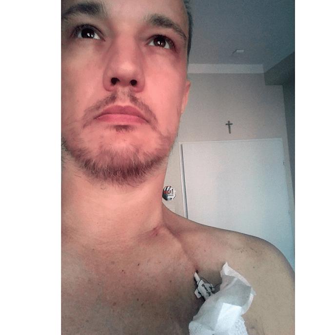 Kidney failure treatment to avoid transplant - Jaroslaw Swierczewski