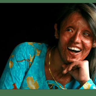 Acid Survivors Trust International (ASTI)